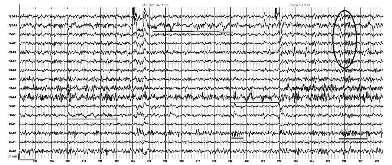 Киста в правой передней области, симптоматическая парциальная эпилепсия. На фоне открытых глаз отчетливо проявляется очаг δ-активности в лобных отделах правого полушария и комплексы полиспайк-δ-активности в затылочных и височных