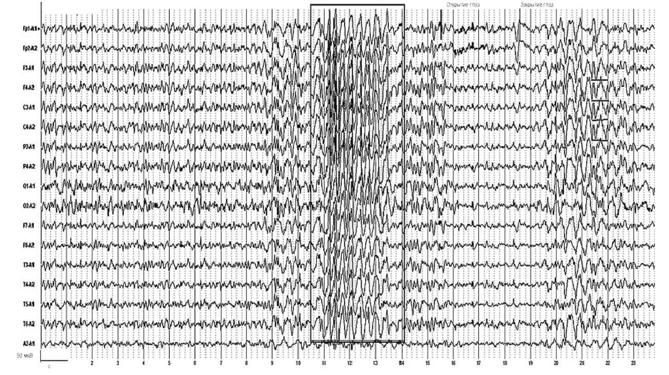 Симптоматическая локально обусловленная эпилепсия. На фоне открытых глаз отчетливо проявляется угнетение генерализованных разрядов высокоамплитудных острых и медленных волн и их восстановление при закрытых глазах