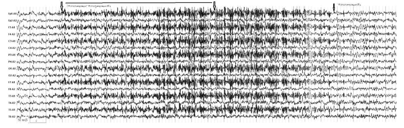 Болезнь Паркинсона. Резкая асимметрия воспроизведения ритма в симметричных отведениях правого и левого полушария (по амплитуде >50%)