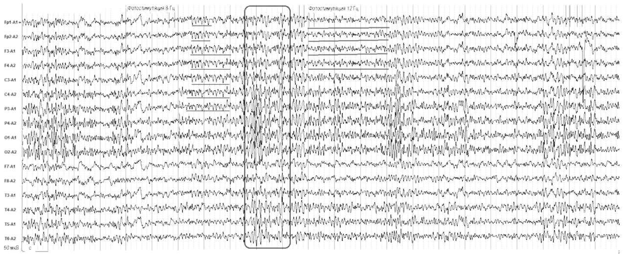 Киста гипофиза. На фоне фотостимуляции в диапазоне 8 и 12 Гц отмечаются синхронные билатеральные разряды групп θ-волн в лобно-центральных отделах мозга. В период между стимуляцией отмечаются генерализованные разряды высокоамплитудных острых волн