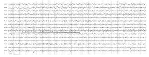 Киста правой передней области. На электроэнцефалограмме отмечаются амплитудная межполушарная асимметрия α-ритма >30%, отсутствие модуляции, появление пароксизмальных α-волн