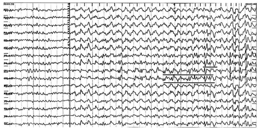 Псевдоабсансы. На фоне фотостимуляции в диапазоне 4 Гц отмечается генерализованная реакция навязывания ритма стимуляции 4 Гц. На этом фоне отмечаются разряды острая-медленная волна и пик-волна, наиболее выраженные в затылочно-теменных отделах мозга