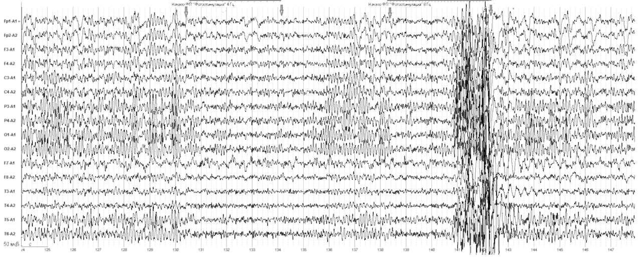 Ситуационный психоз. На фоне фотостимуляции в диапазоне8Гц отмечаются короткий пароксизмальный ответ (генерализованные разряды острая-медленная волна и комплексы пик-волна, наиболее выраженные в височных отделах мозга)