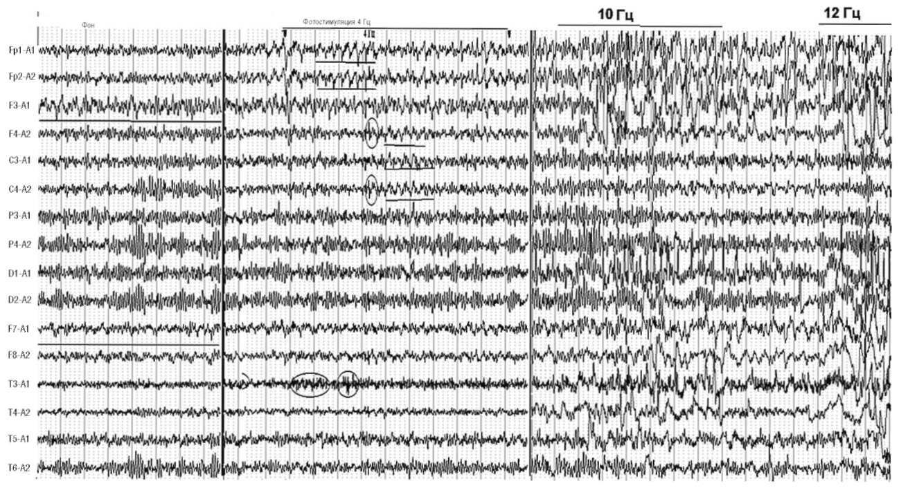 Возбуждение субгармоник в диапазоне 4 колебаний/с в лобно-центральных отделах и вспышки ß-активности в височных отделах. На фоне ритмической фотостимуляции 10 и 12 колебаний/с отмечаются резкое усиление высокоамплитудных острых и медленных волн в лобно-височных отделах, дезорганизация