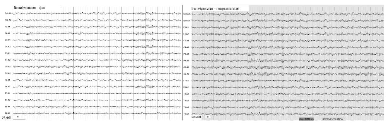 Вестибулопатия (повышенная возбудимость вестибулярной системы, склонность к укачиванию и проявлениям морской болезни). Усиление α-активности и ослабление δ-активности на фоне 2-минутной гипервентиляции