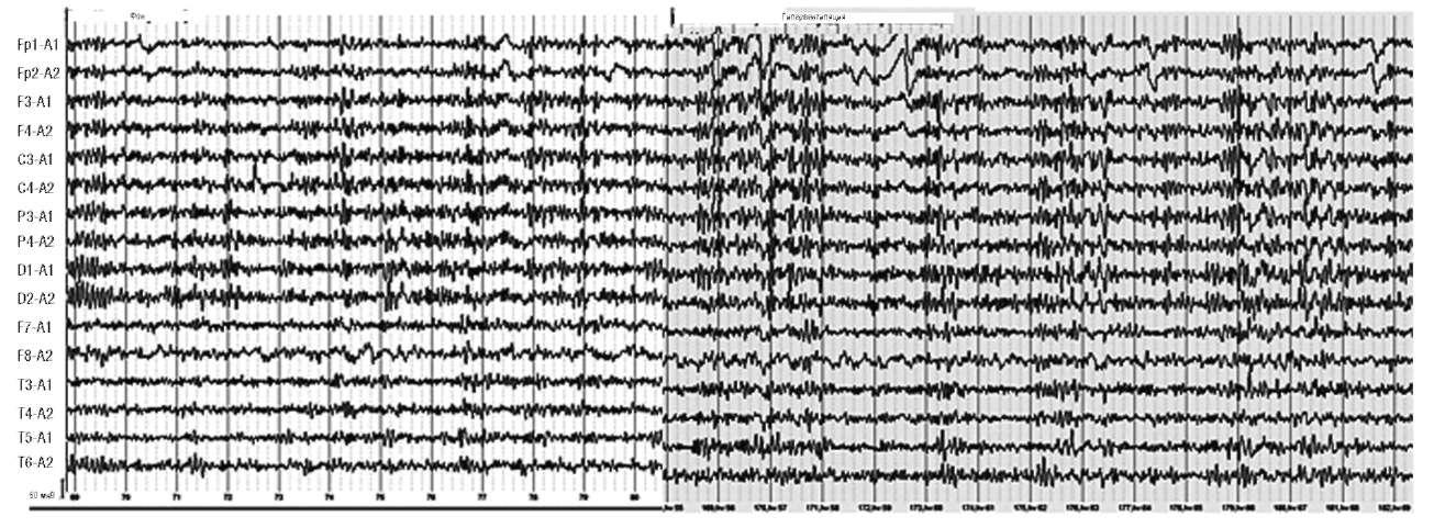 Мигрень. На фоне гипервентиляции отмечается усиление пароксизмальной активности в виде комплексов острых и медленных Θ- и δ-волн