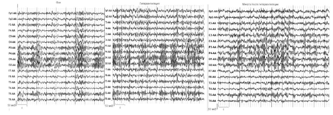 Усиление пароксизмальных разрядов высокоамплитудных острых Θ- и δ-волн на фоне гипервентиляции, сохранившееся после ее отмены