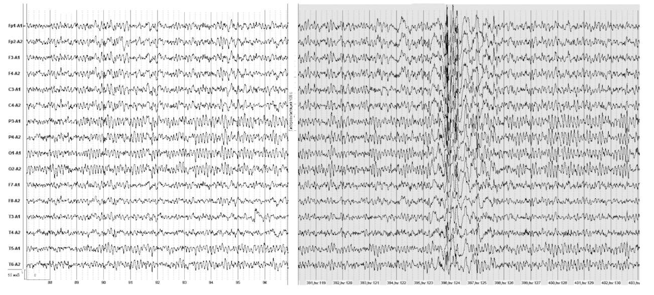 Вторично-генерализованные судорожные приступы. На фоне гипервентиляции на 108-й секунде появляются генерализованные комплексы полиспайк-медленные волны
