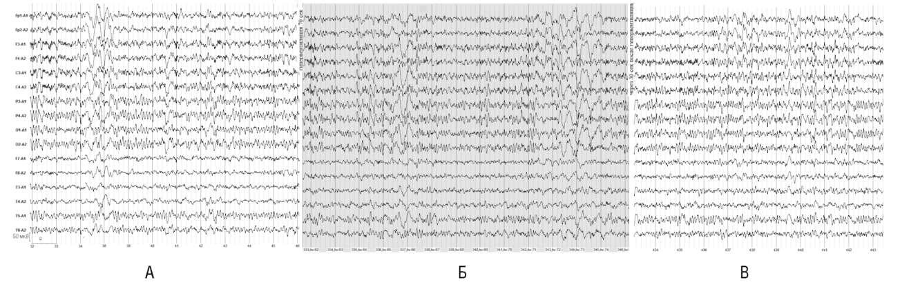 Неврологически здоров. В фоновой записи электроэнцефалограммы (А) отмечаются генерализованные пароксизмальные разряды высокоамплитудных θ-волн. На 2-й минуте гипервентиляции отмечается усиление пароксизмальной активности (Б), но по окончании гипервентиляции (В) отмечается возврат к исходной электроэнцефалограмме