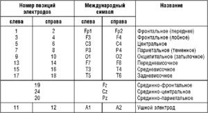 Обозначения позиций электродов