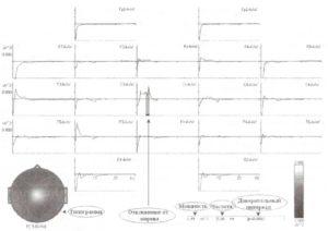 Результаты сравнения спектров с нормативной HBI базой данных