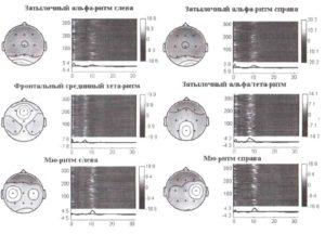 Анализ независимых компонент амплитудных спектров