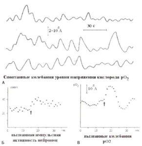 Сверхмедленные колебания локального уровня концентрации кислорода в ткани мозга