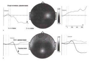 Вызванная десинхронизация во время подготовки к движению и во время самого движения