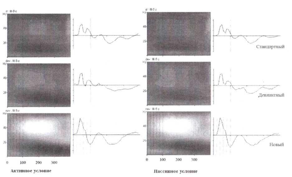 Синхронизация гамма-активности при внутричерепных регистрациях