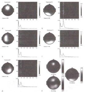 Среднелобная тета-активность как отдельная ритмичная компонента ЭЭГ
