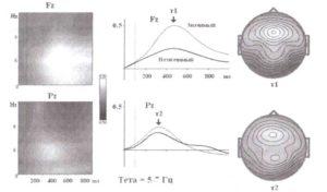 Два типа тетаподобной активности (волновой анализ)