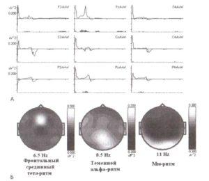 Два типа тетаподобной активности (спектральный анализ)