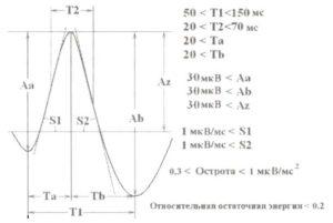 Временные и амплитудные параметры формы волнового сигнала, используемые для автоматического обнаружения спайка