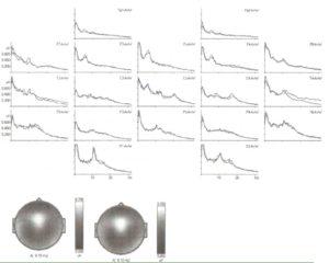 Длительность записи ЭЭГ в три минуты обеспечивает достоверные и воспроизводимые спектры ЭЭГ
