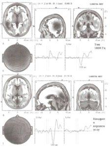 Электромагнитная томография низкого разрешения (LORETA)