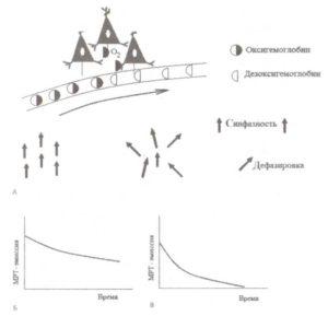 Измерение метаболической активности методом фМРТ