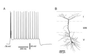 Пачка спайков нейрона (англ. Burst)