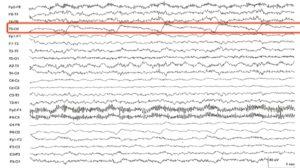 Артефакт на ЭЭГ за счет работы механического