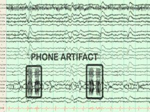 Артефакт на ЭЭГ за счет работы телефона