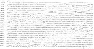 Медленное движение глаз на ЭЭГ