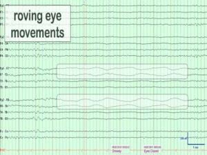 Артефакт при вращение глаз на ЭЭГ
