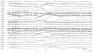 Движение провода на ЭЭГ