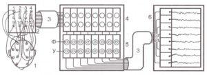 Блок-схема электроэнцефалографа.