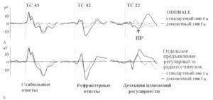 Три механизма операции сравнения (регистрация активности нейронов с долгосрочных имплантированных электродов в слуховой модальности)
