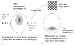 Типы негативностей, связанные с функцией внимания (схематическое представление)