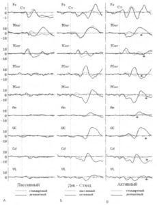 Разнообразие Р3b-подобных компонент, регистрируемых при помощи имплантированных электродов