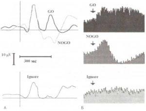 Локальный потенциал поля, отражающий реакцию нейронов на уровне вентрального таламуса