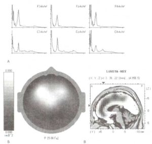 Спектральный анализ ЭЭГ при паркинсонизме
