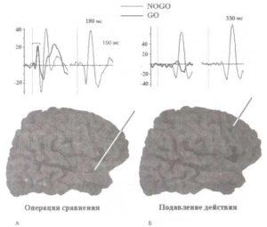 Отражение операций сравнения и подавления действий в активности, зарегистрированной при помощи имплантированных электродов