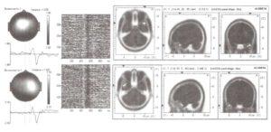 Разложение фрагмента ЭЭГ одной пробы на независимые компоненты