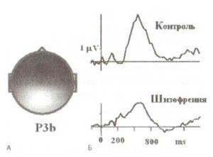 Уменьшение амплитуды компоненты Р3b у пациентов с шизофренией