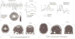 Данные количественной ЭЭГ и когнитивных ВП у пациента с ОКР