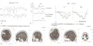 Спектры и асимметрия когнитивных ВП у пациента с депрессией