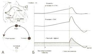 Плацебо-эффект (модель)