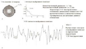 Первый шаг при создании протокола ЭЭГ-биоуправления — определение параметра ЭЭГ-биоуправления