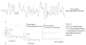 Второй шаг — расчет в реальном времени параметра ЭЭГ-биоуправления с помощью быстрого преобразования Фурье