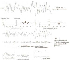 Второй шаг — расчет параметра ЭЭГ-биоуправления с помощью КИХ-фильтра