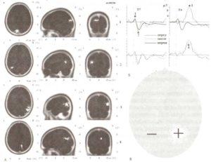 ТКМП у пациента с сенсорным дефицитом