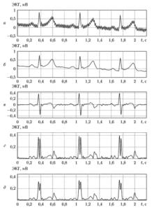 Этапы выделения желудочкового комплекса ЭКГ