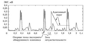 Иллюстрация принципа работы алгоритма обнаружения желудочкового комплекса ЭКГ